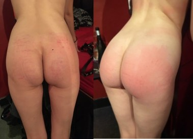 post spanking bottom both 2
