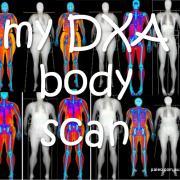 My DXA body scan dexa weight loss body fat-min