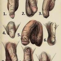 Is My Penis Normal; What's In a Penis Size and Shape? (NSFW)