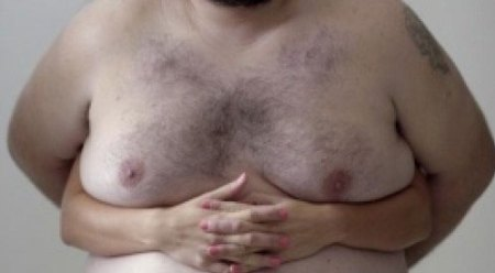 man-breast-cancer