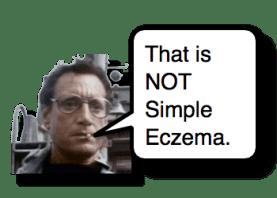 Eczema Herpeticum