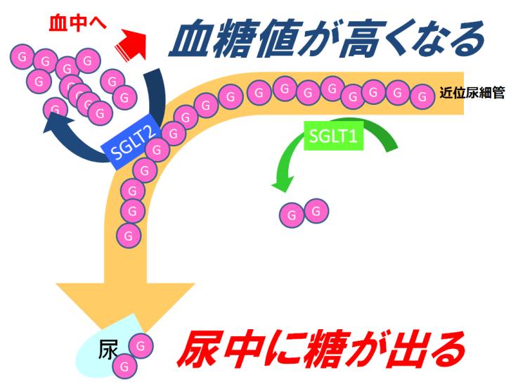 【SGLT2阻害】糖尿病の近位尿細管