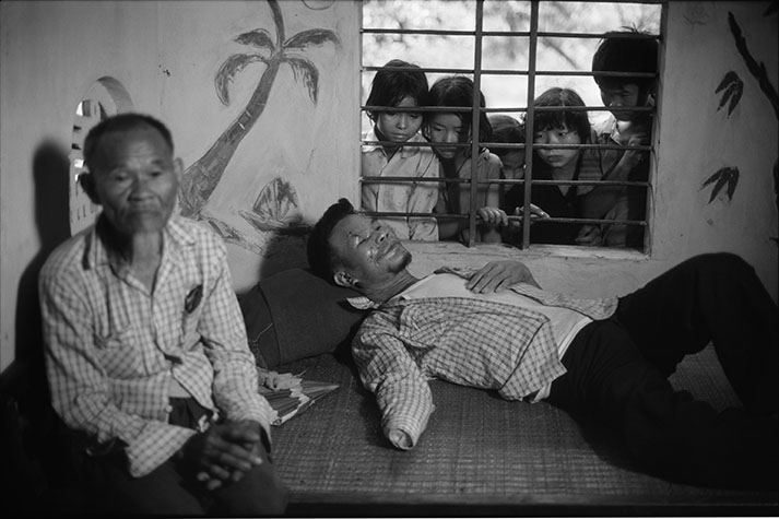 VIET NAM. Mai Chiem Tiam, 46 years old, from Dong Ha town, lost his hand and had his optic nerves severed when he picked up a pineapple bomb in his paddy field in January 1987. He had farmed the land for ten years without mishap. He found the bomb and threw it to one side. A few days later when he lifted it up a second time it exploded.