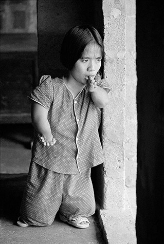 VIETNAM. Cam Nghia. LE THI Hoai Nhonn, 23, has the stature of a three-year-old, with stunted fingers and toes. Her father, LE Huu Dong, 55, a rice farmer, was stationed nearby in the Saigon Army for the entire war. 1998