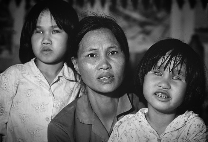 VIETNAM. Nam Dinh. VU Thi Lam with her daughters Lien, eight, and Hien, six, were both born without lenses in their eyes. Their father, Dam Viet Thuoc, was sprayed when he was a lorry driver in the south.  1980