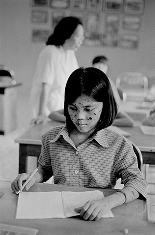 VIETNAM. KIM Thoa, sixteen, suffers from a disfiguring skin condition; her face and body are covered with patches of black, scaly growths. Her father was sprayed while fighting in the south. She worries that her skin looks like that of an animal. 2002