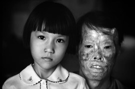 VIETNAM. This woman, badly disfigured during a napalm strike, adopted this girl as a baby. The child was orphaned when her family died in an American attack. 1981