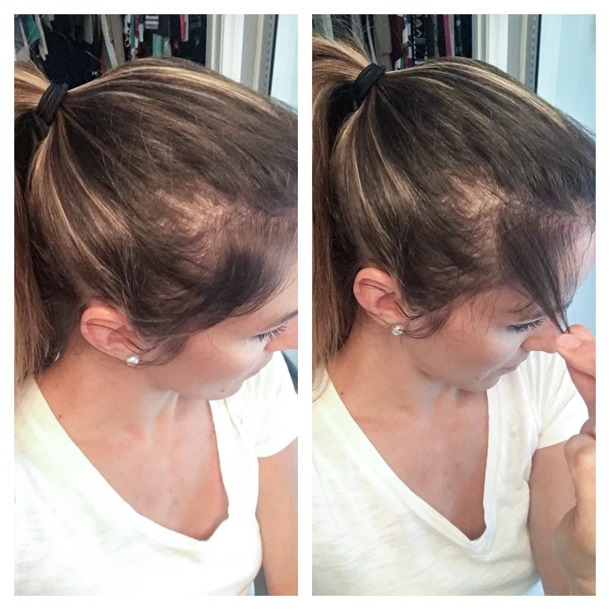 Formidable Postpartum Hair Loss Hair Reviews Hair Thickening Collagen Taking Collagen Ments Why I Take Collagen Collagen nice food Collagen For Hair