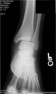 ankle-xray-2