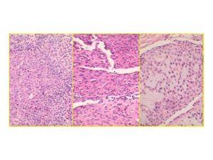 caso-tumor-una-pchang_page_5