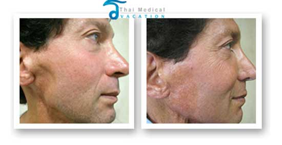 stem cell facelift thailand before after dave after reconstruction Non Surgical Stem Cell Facelift Bangkok Prices Doctor Reviews Pictures
