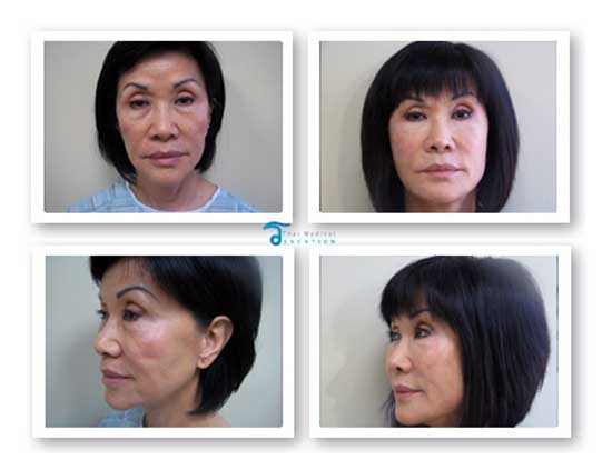 stem cell facelift thailand before after Non Surgical Stem Cell Facelift Bangkok Prices Doctor Reviews Pictures