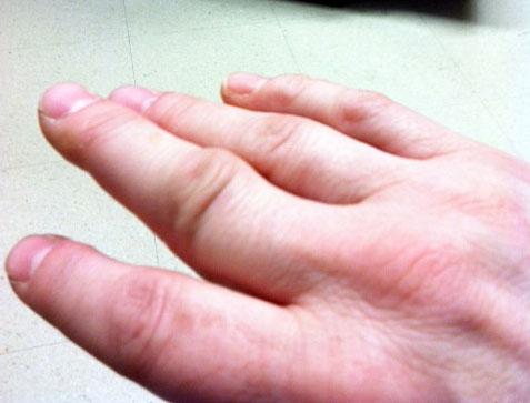 how to know if i dislocated my finger knuckle