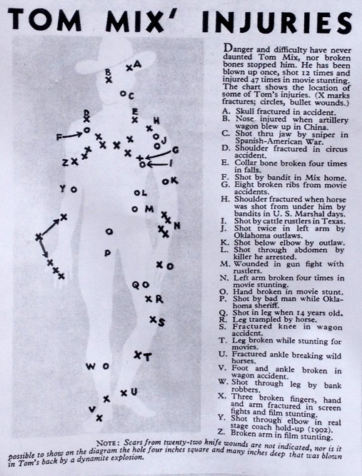 Tom Mix injuries. He was shot several times while a US Marshall.