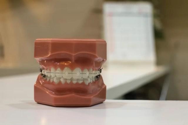 Jak dbać o aparat na zęby?