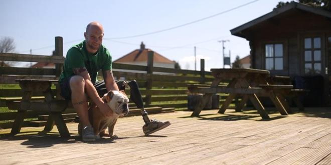 World's most advanced prosthetic leg helps amputee find his feet