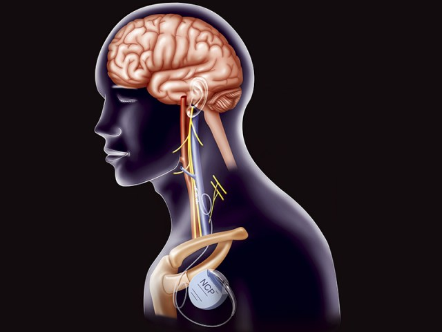 Non-invasive Vagus nerve stimulation