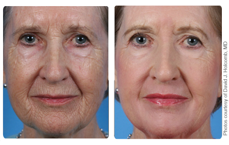Skin Resurfacing3a