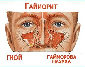Как народными средствами лечить гайморит