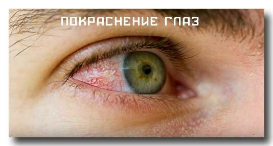 Расширение сосудов глазного яблока при хронической усталости