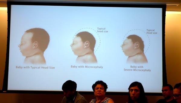 El mosquito transmite el virus del Zika y los bebés nacen con microcefalia, es decir, con el cerebro más pequeño. Fotos Javier Castaño