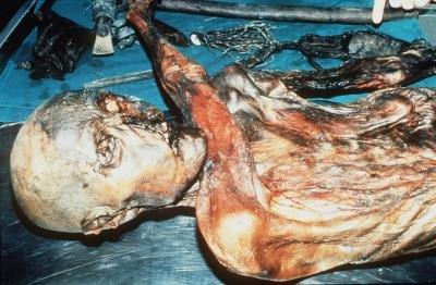 La momia de Ötzi fue encontrada congelada en 1991 en un glaciar de los Alpes, Italia. EFE