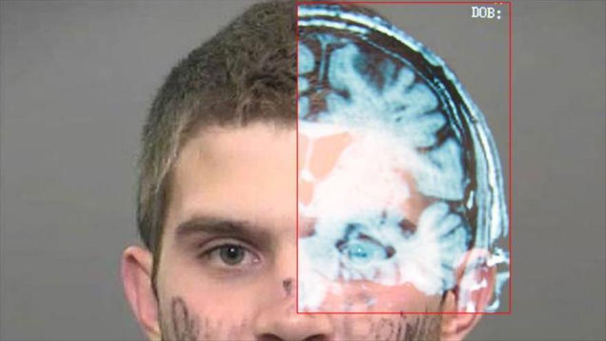 Parte derecha, imagen cerebral tomada de un escáner.