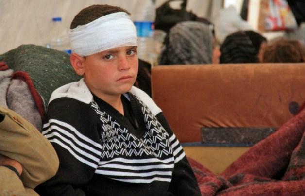 AFP / Omar Haj Kadour Un niño sirio en la provincia de Idlib el 17 de abril de 2017, tras resultar herido en el atentado suicida perpetrado durante la evacuación de civiles de dos ciudades del norte de Siria