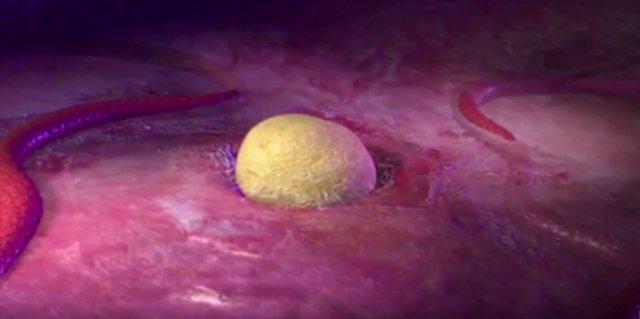 Cáncer de ovario. Roche