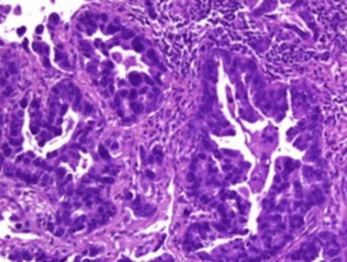 Microfotografía de tumor de origen desconocido identificado como cáncer de pulmón usando el test EPICUP®. / IDIBELL