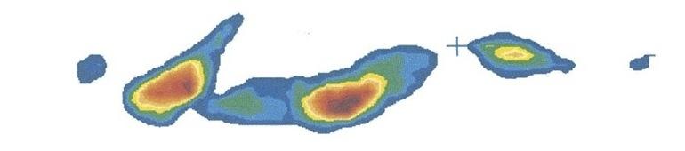 横向き寝体圧画像