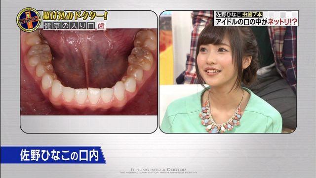sanohinako1