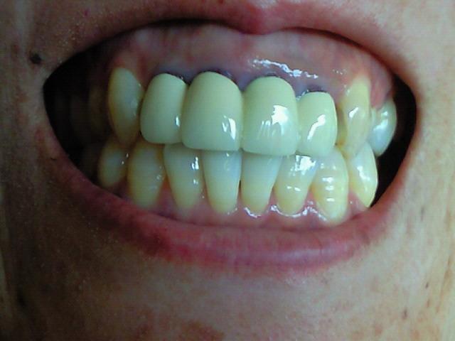前歯131