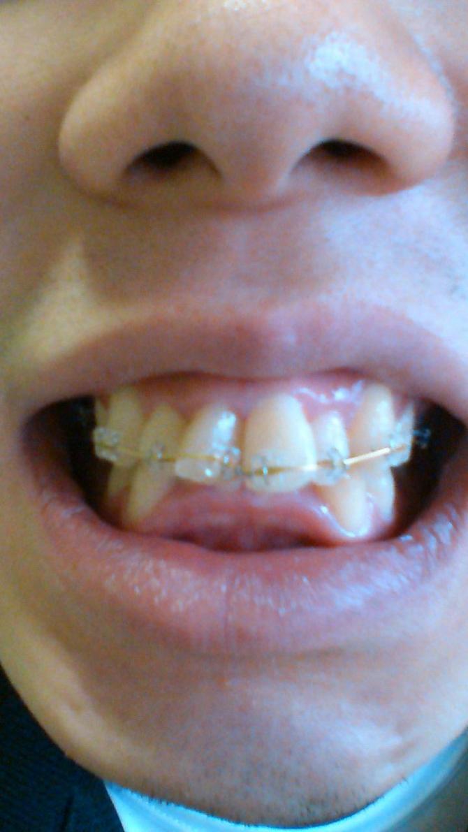 歯列矯正11