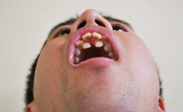 歯並び11