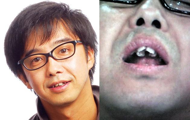 歯並び18