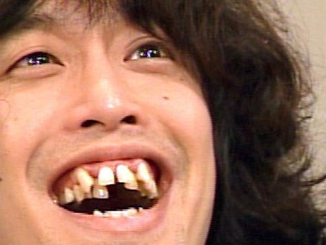 歯並び19