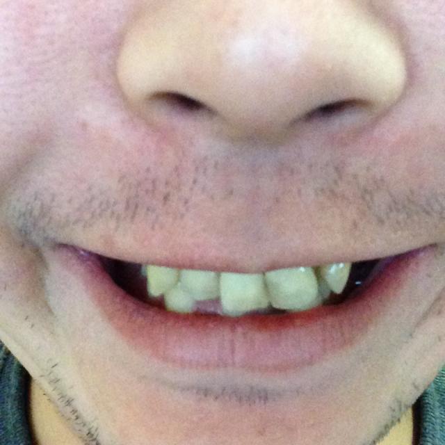 歯並び26