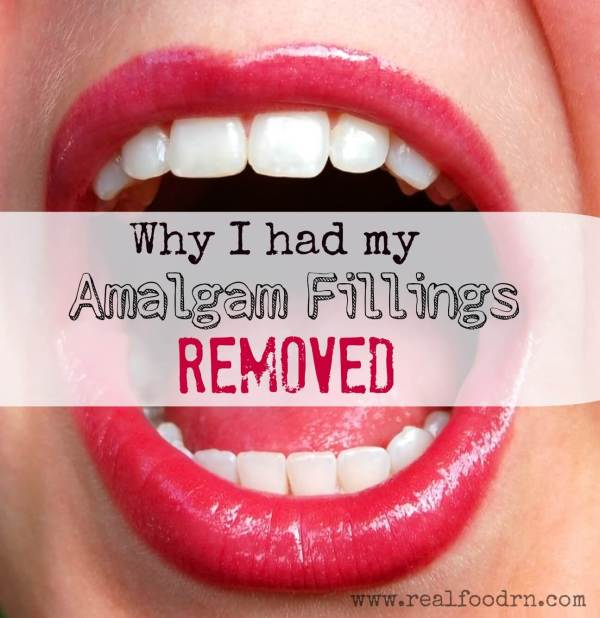 Why I had my Amalgam Fillings Removed | Real Food RN