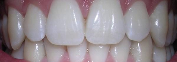 Tænder (3)