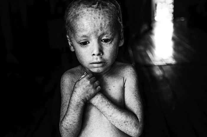 12-07-2014, Alicia Baja- Colonia Aurora, province of Misiones Lucas Techeira is a three years old child that was born with ichthyosis, a skin disorder that causes the skin get dry and crack. Lucas's mother used to manipulate glyphosate in her vegetable garden.