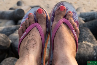 Tak wyglądają stopy po spacerze ulicami Mumbaju!