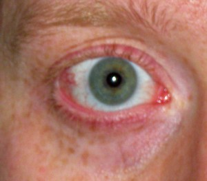 the eye2