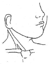 Imagen del músculo Esternocleidomastoideo