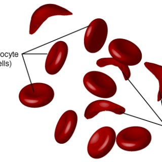 Sickle cell anaemia silent epidemic. Photo Courtesy