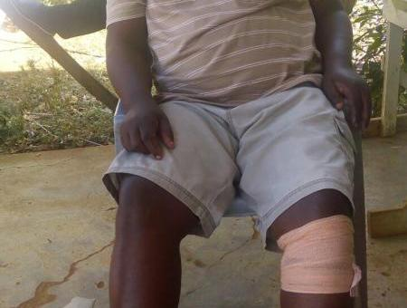 Michael Angengo,42, is among a few victims around the globe who walk around with bullets lodged in their bodies.PICTURE by OMONDI GWENGI
