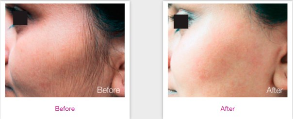 Results Laser Treatments