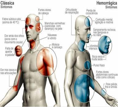 Sintomas dengue vs dengue hemorrágica