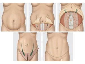 diagram of a tummy tuck