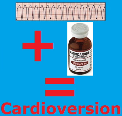 VT + Amiodarone Cardioversion